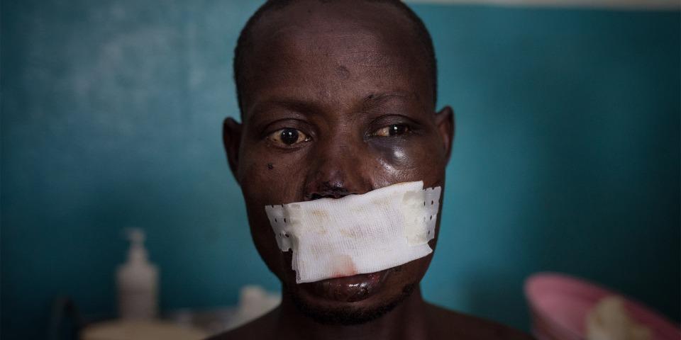 33歲的甘比是一位農夫。武裝分子在一次試圖偷取他的牛隻時射傷了他的左臉頰及嘴巴。©Alexis Huguet