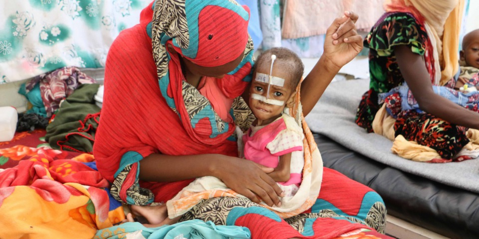 正在接受營養不良治療的孩子。©MSF