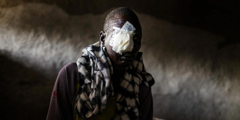 彼得在逃離村莊時頭部中彈,被送至無國界醫生醫院。攝於2015年。©Dominic Nahr/MAPS