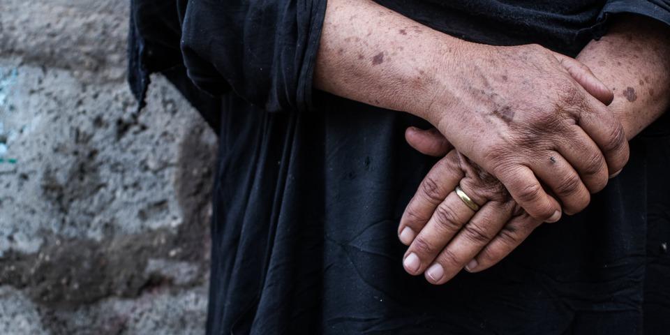 流離失所者納瓦爾接受無國界醫生的憂鬱症諮詢。©MSF/Sacha Myers