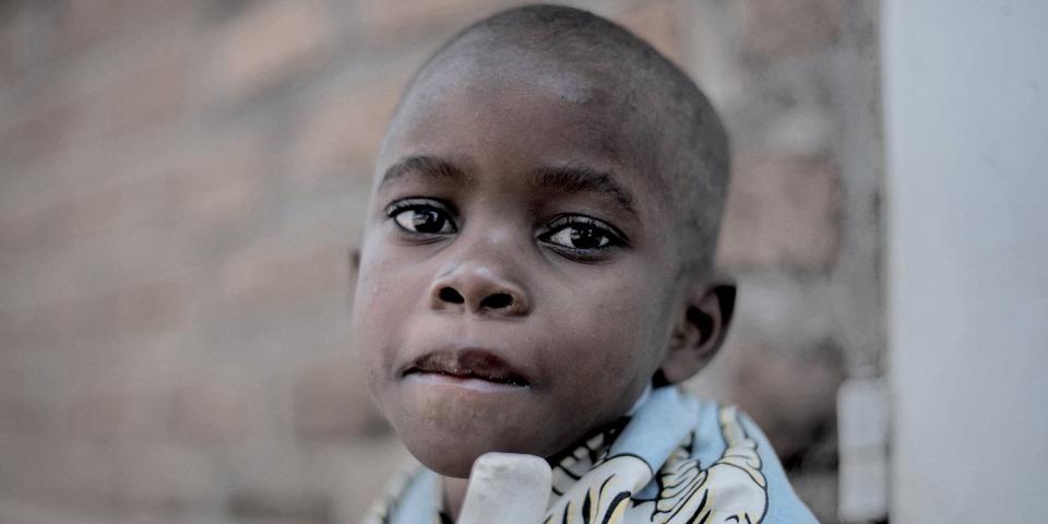 攝於2017年,馬拉維恩桑杰地區,無國界醫生支援的一個愛滋及結核病治療專案。圖為感染愛滋病毒及結核病的11歲患者,奇帕蘇拉。©Luca Sola