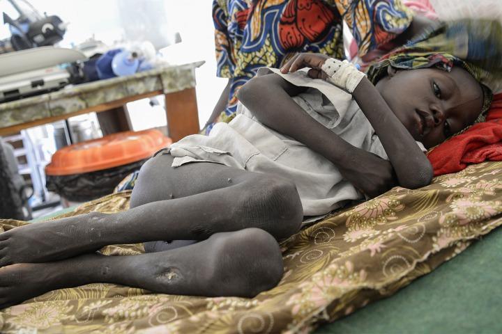 7歲的穆罕默德重14.5公斤,現於無國界醫生專為營養不良兒童問而設的治療餵食中心內接受治療。 © Aurelie Baumel/MSF
