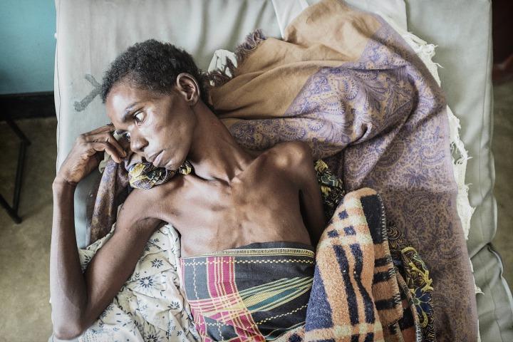 馬拉威恩桑傑:37歲的克里希是三個孩子的媽,因為末期愛滋病而被轉送至恩桑傑區醫院。© Luca Sola
