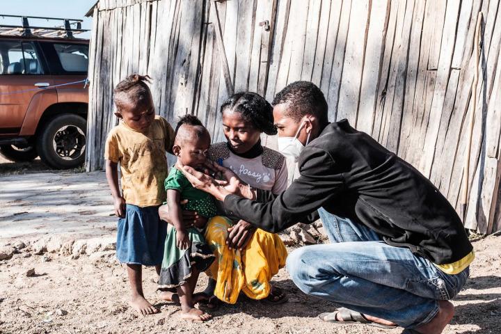 MSF工作人員為一個嚴重營養不良的孩子做檢查,攝於2021年7月,馬達加斯加。©Erwan Rogard