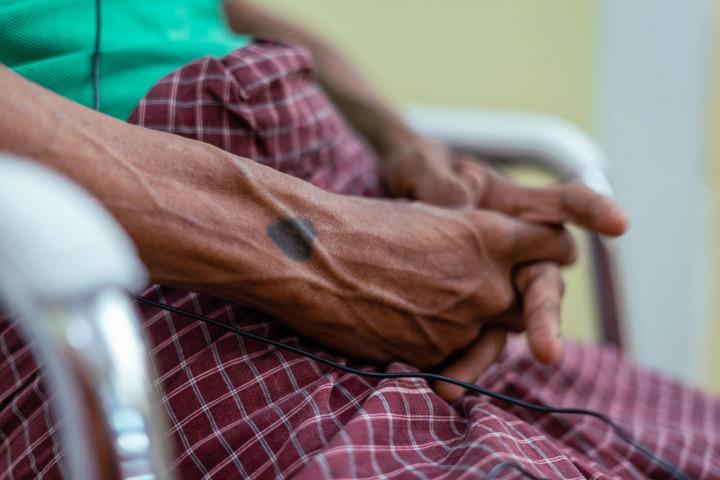 在仰光的愛滋諮詢服務。病患手上的心形刺青。© MSF/BEN SMALL