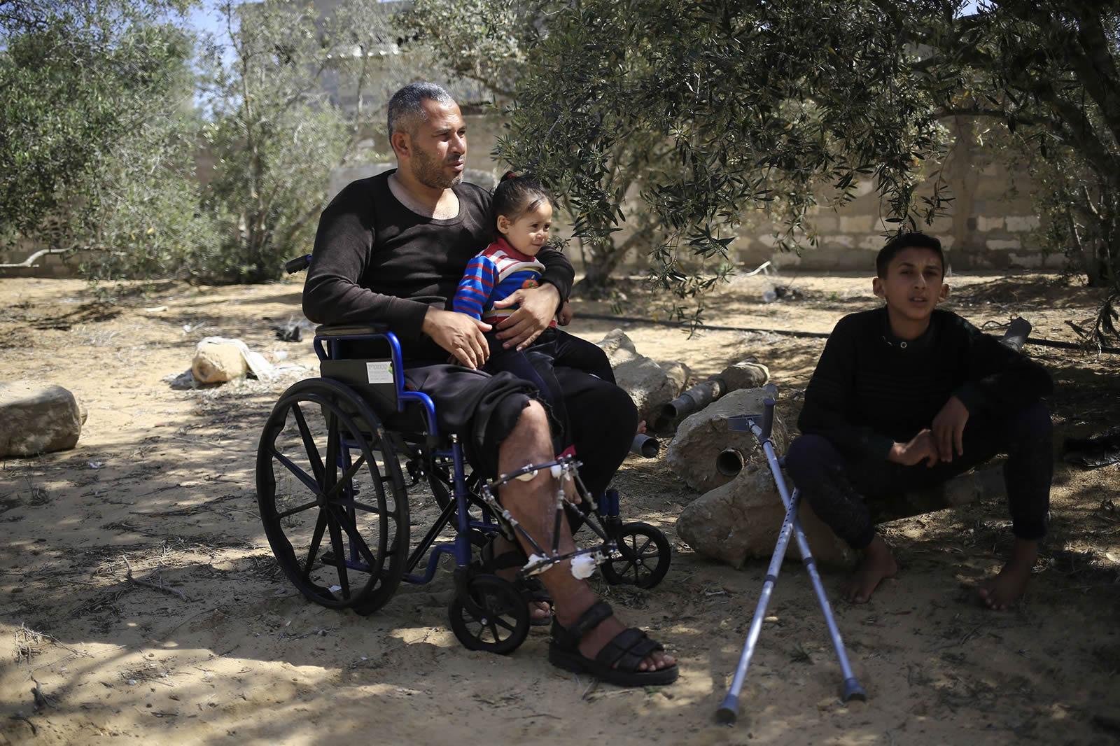 艾哈邁德的腿也在那天受了傷。©Mohammed ABED