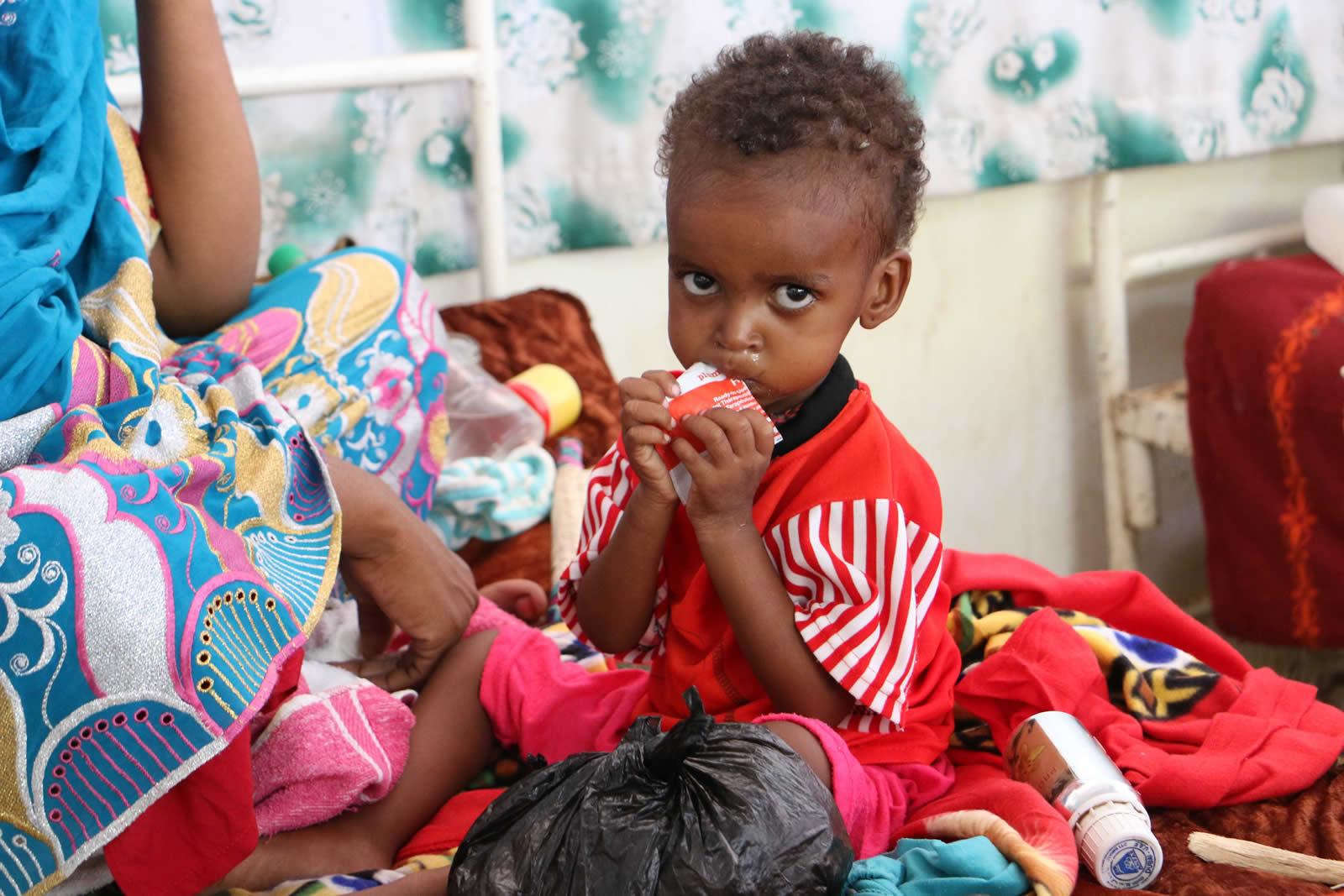 一個嚴重營養不良的孩子,正在中心接受治療。