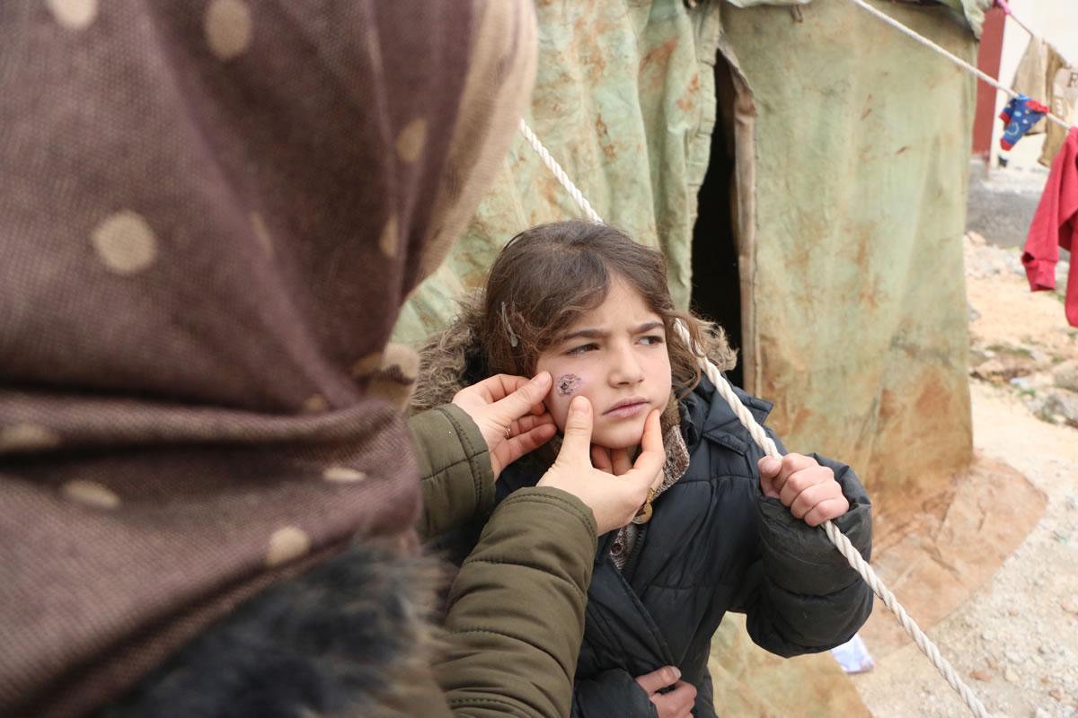 難民營裡的一個小女孩,臉頰上有著皮膚型利什曼病所造成的潰瘍。這是一種被忽視的熱帶疾病,由白蛉透過叮咬傳播。