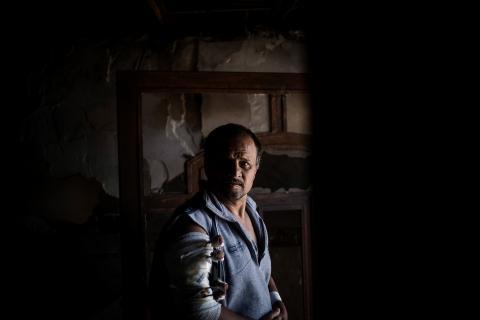 哈希姆受流彈所傷,傷口一度受到感染。© Diego Ibarra Sánchez/MEMO