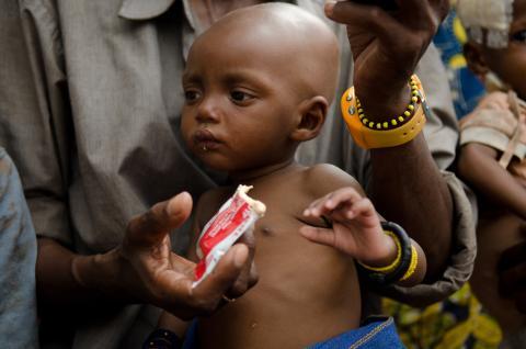 這個小男孩來自中非共和國,因武裝衝突而離開家鄉,成為難民。患有營養不良的他正在食用的即食營養食品,就是無國界醫生用來治療營養不良兒童的主要工具。