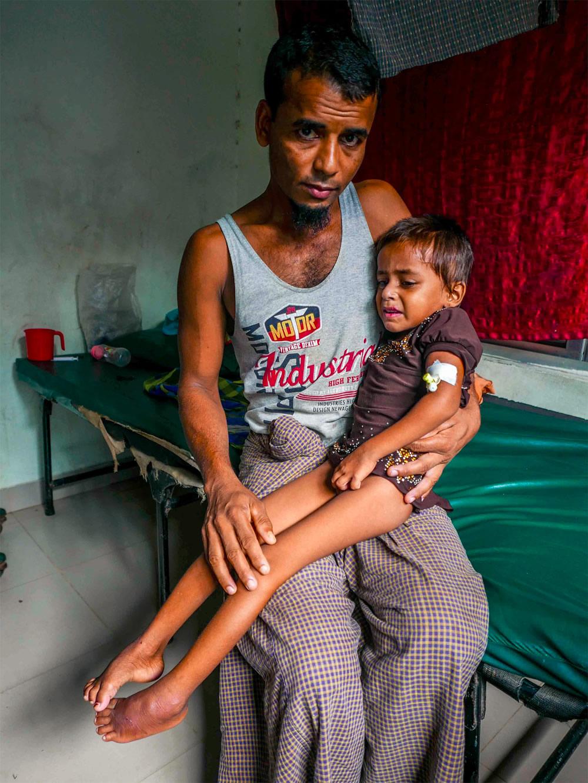 照片攝於女孩剛被送到無國界醫生醫療設施後不久。 © Ian Cross/MSF