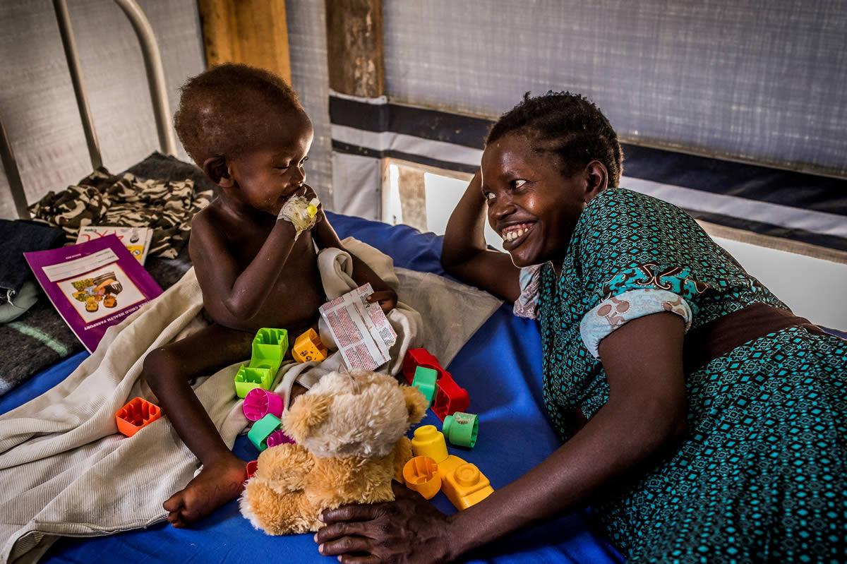 在比迪比迪的無國界醫生健康中心住院部,一名營養不良的男孩和他的母親相視而笑。© Frederic NOY/COSMOS