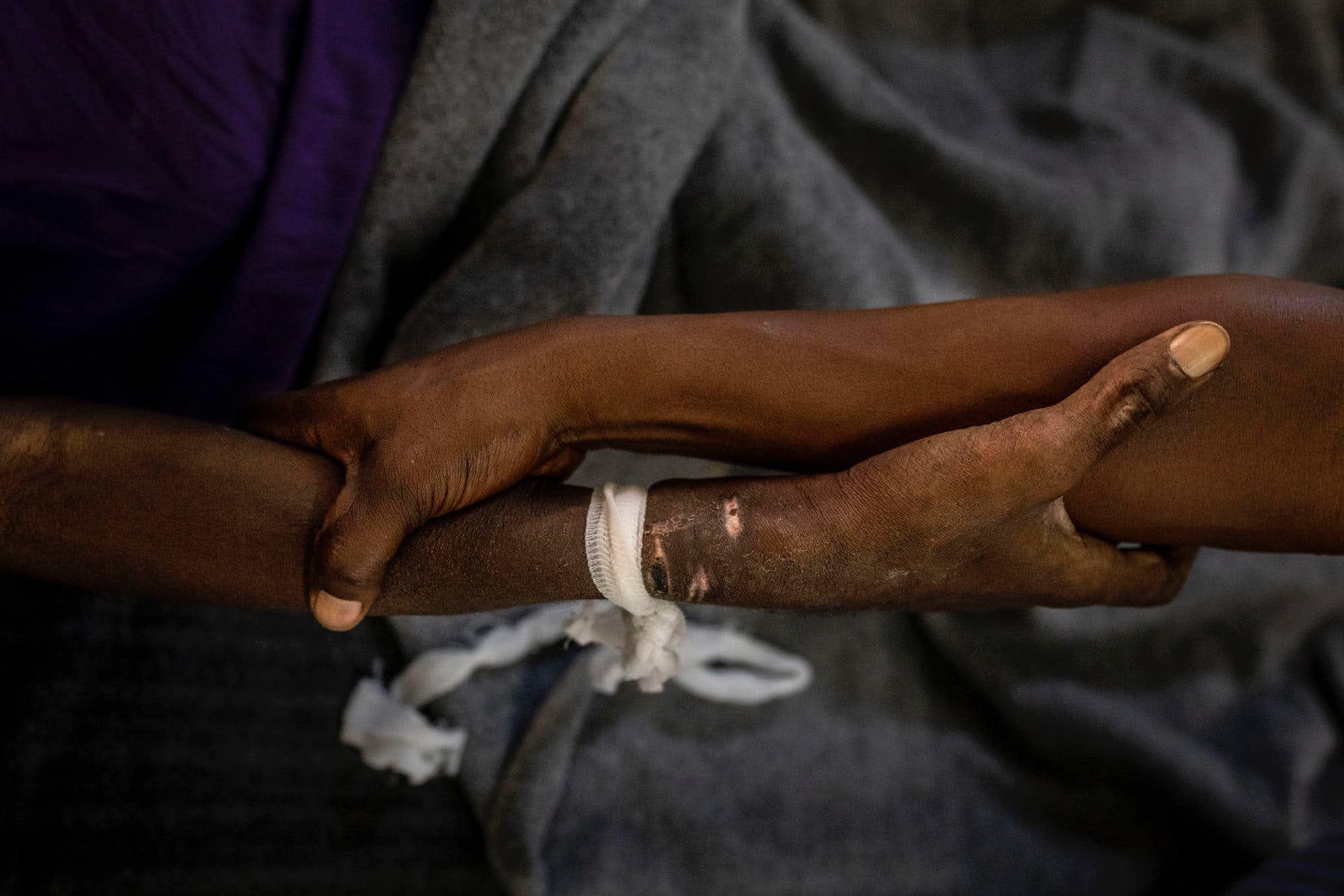 year-2019-08-DRC-advanced_HIV_treatment.jpg